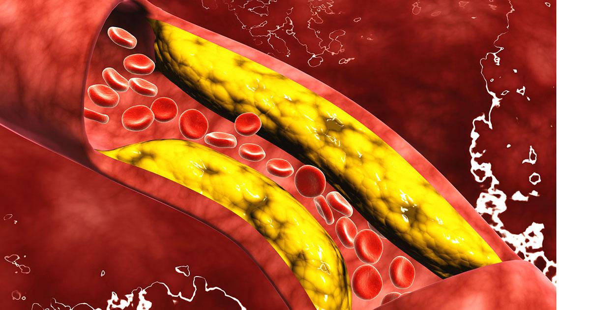 Dieta de colesterol y presión arterial alta