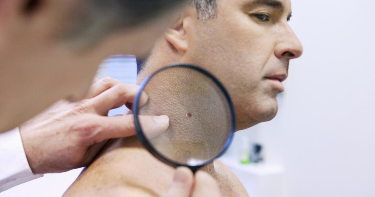 penyebab kanker kulit