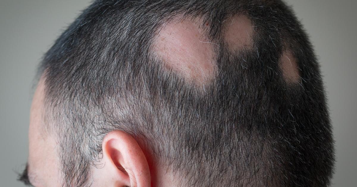 Alopeica areata