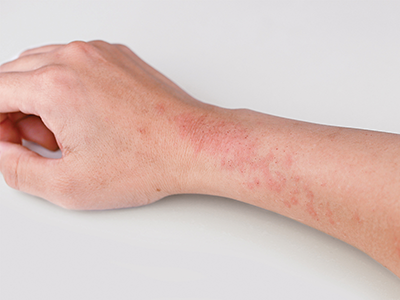 Dry And Itchy Skin Or Is It Eczema Get Healthy Stay Healthy