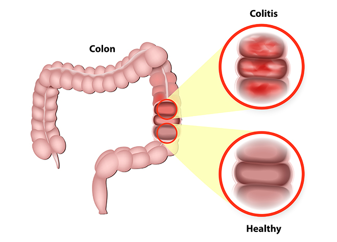 Living With Ulcerative Colitis