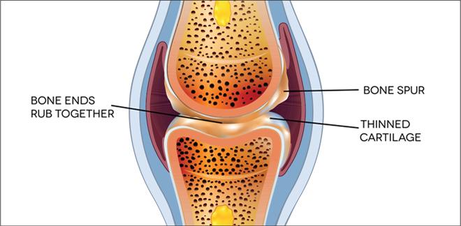 Osteoarthritis bone joint