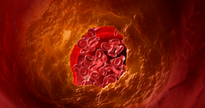 High Cholesterol and Your Risk for Heart Disease   Get Healthy Stay Healthy